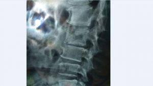 tbc tulang belakang