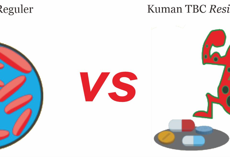 Perbedaan TBC Reguler dan TBC Resistan Obat